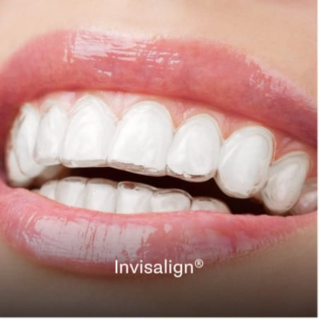 Example of clear braces known as invisalign in Charleston, SC
