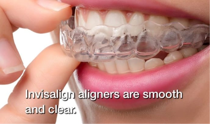 Woman removing clear braces with text saying invisalign retainers are smooth and clear. Orthodontist in Charleston SC