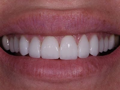 Full Mouth Reconstruction Gallery - Patient 4891094 - Image 1