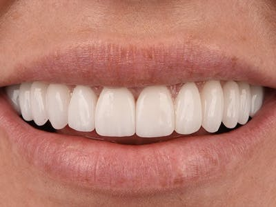Full Mouth Reconstruction Gallery - Patient 4891094 - Image 2