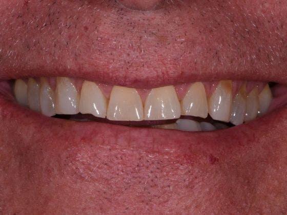 Prep-less Veneers Gallery - Patient 4891086 - Image 1