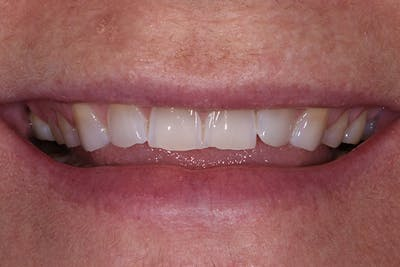 Full Mouth Reconstruction Gallery - Patient 7316549 - Image 1