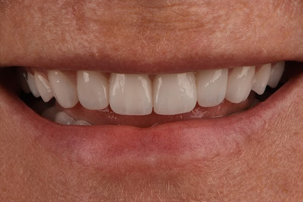 Full Mouth Reconstruction Gallery - Patient 7316549 - Image 2