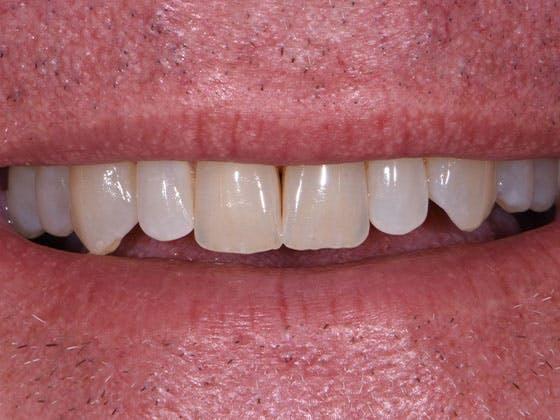 Prep-less Veneers Gallery - Patient 39208814 - Image 1