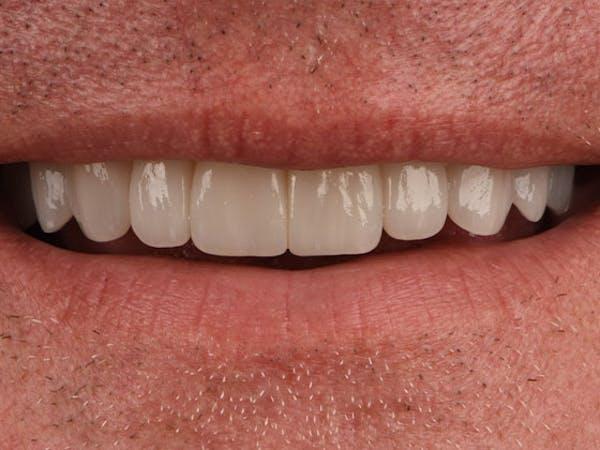 Prep-less Veneers Gallery - Patient 39208814 - Image 2