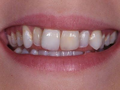 Porcelain Crowns Gallery - Patient 39208968 - Image 1