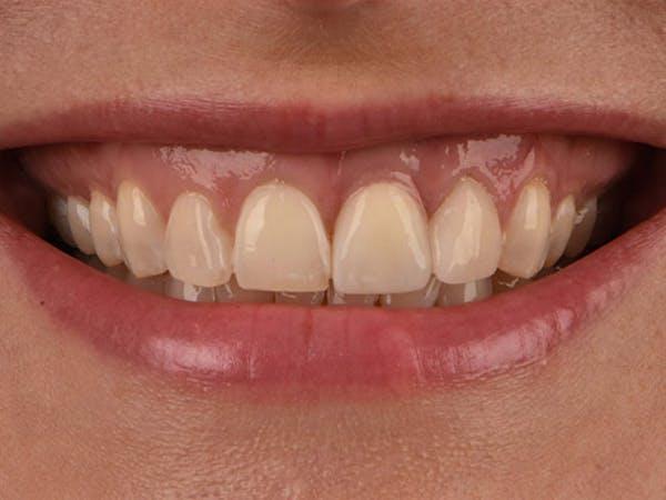 Dental Implants Gallery - Patient 39217589 - Image 2