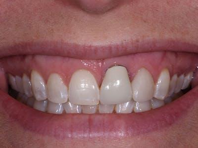 Dental Implants Gallery - Patient 39217589 - Image 1