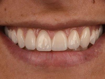 Porcelain Crowns Gallery - Patient 39217614 - Image 2