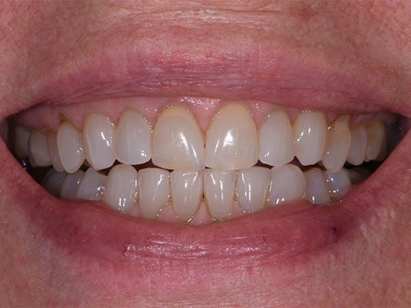 Teeth Whitening Gallery - Patient 39976996 - Image 1