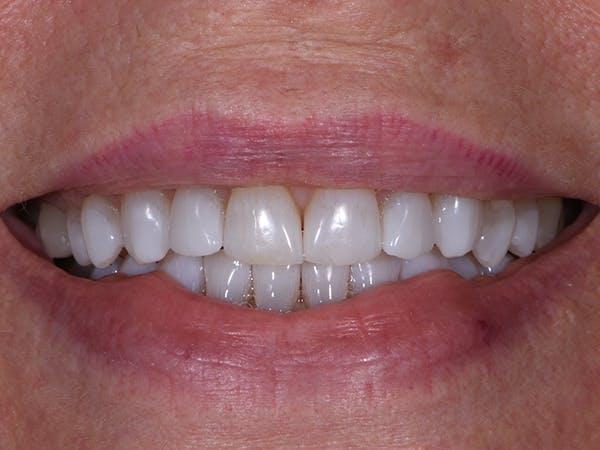Teeth Whitening Gallery - Patient 39976996 - Image 2