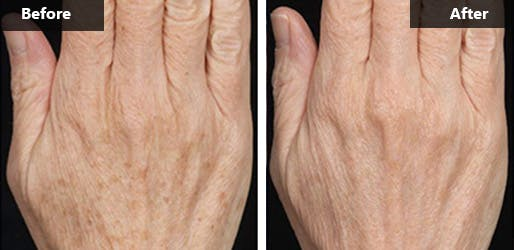 Fraxel Dual Laser Treatment in NYC