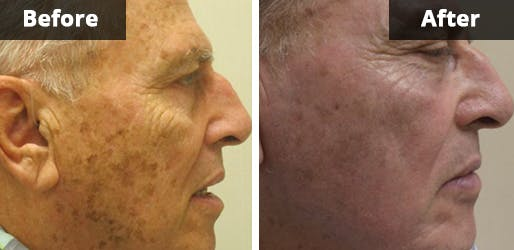 Before & After Fraxel Laser in NYC
