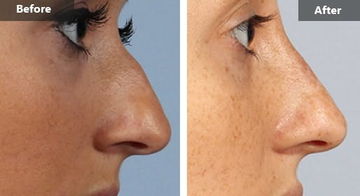 Non-Surgical Nose Job in NYC