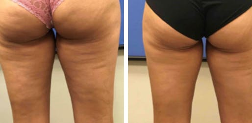 Cellulite Treatment NYC