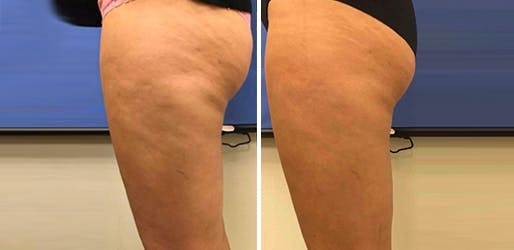 Cellulite Reduction NYC