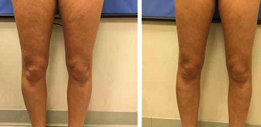 NYC Cellulite Reduction