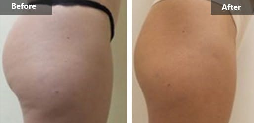Radiofrequency Wrinkle Reduction