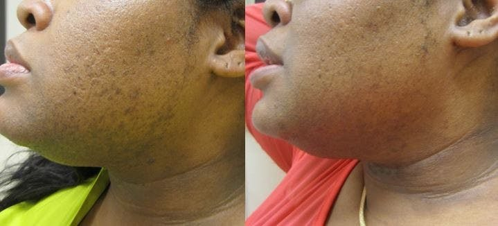NYC Laser Hair Removal Before & After