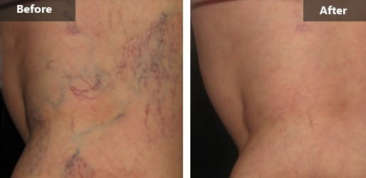 Spider Vein Treatment Before & After Photos