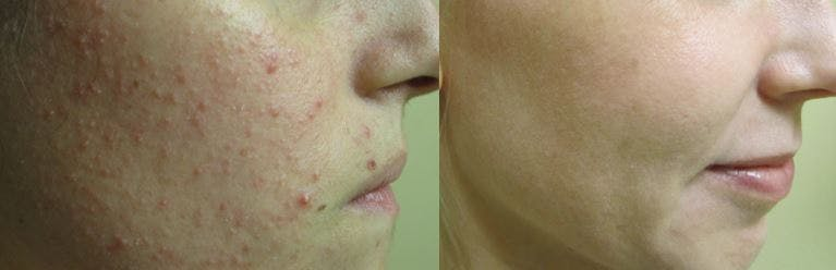 Acne Treatment in NYC