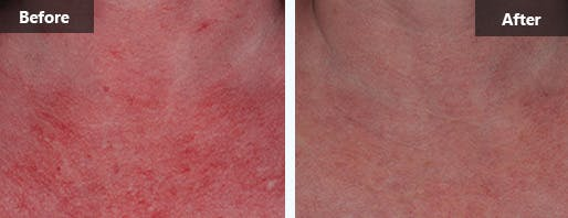 Rosacea Treatment Before and After Photos