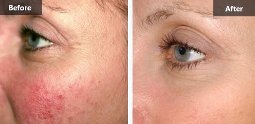 Rosacea Treatment in New York City