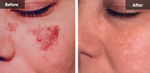 NYC Rosacea Treatment Photos