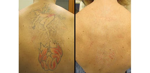 Laser Tattoo Removal in New York City