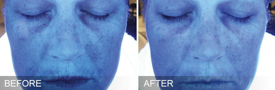 NYC Hydrafacial Before & After