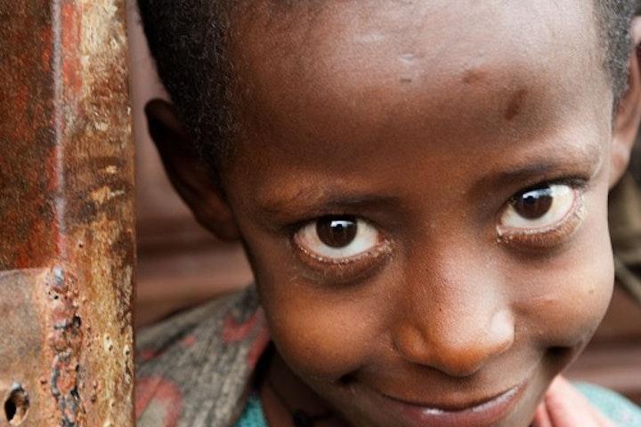Terre des Hommes noodhulp Ethiopië