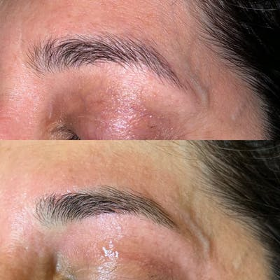 Brow Wax Gallery - Patient 3198996 - Image 1