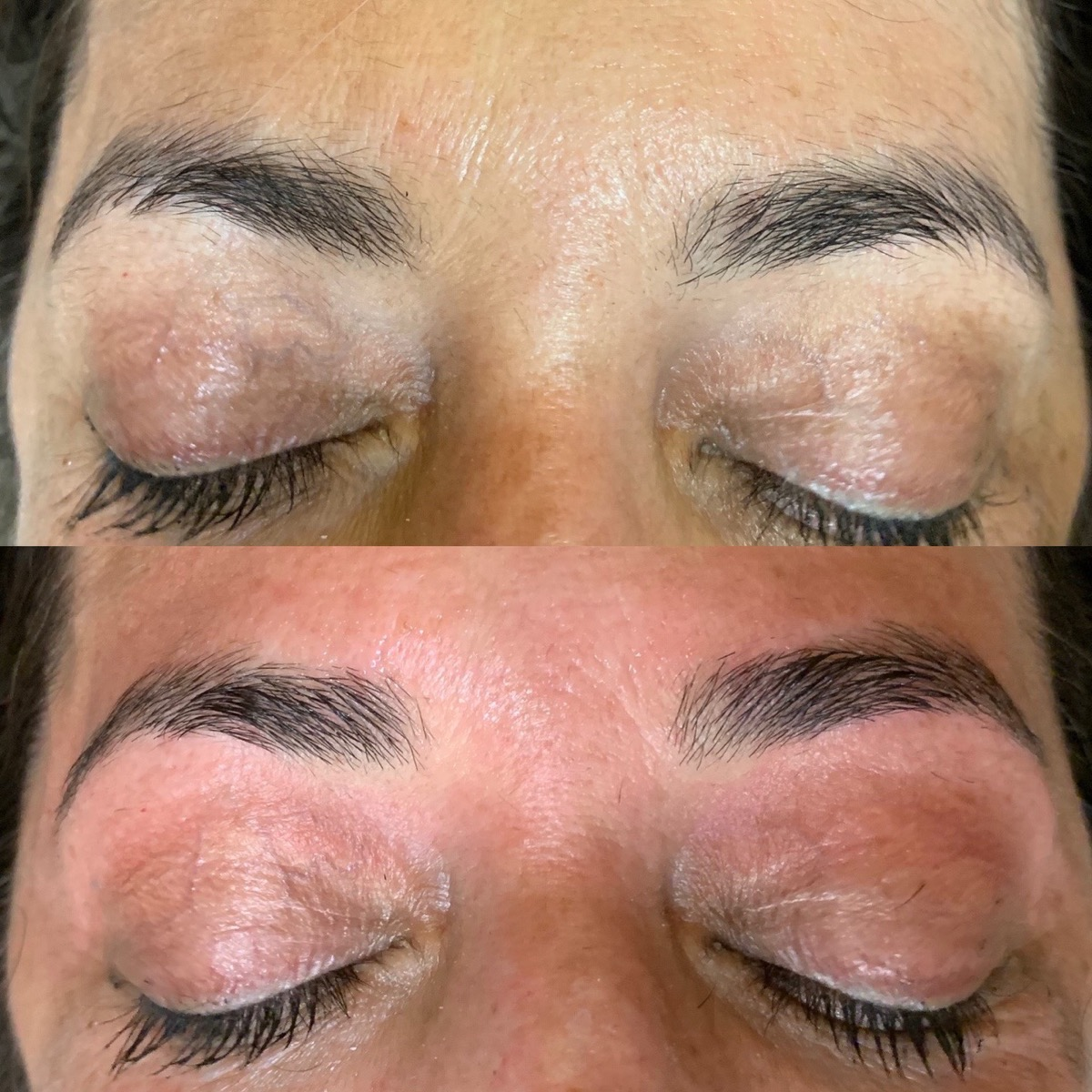 Brow Wax Gallery - Patient 3198998 - Image 3