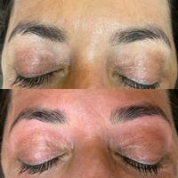 Brow Wax Gallery - Patient 3198998 - Image 1
