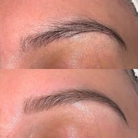 Brow Wax Gallery - Patient 3198999 - Image 1