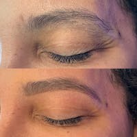 Brow Wax Gallery - Patient 3199000 - Image 1