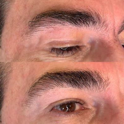 Brow Wax Gallery - Patient 3199001 - Image 1