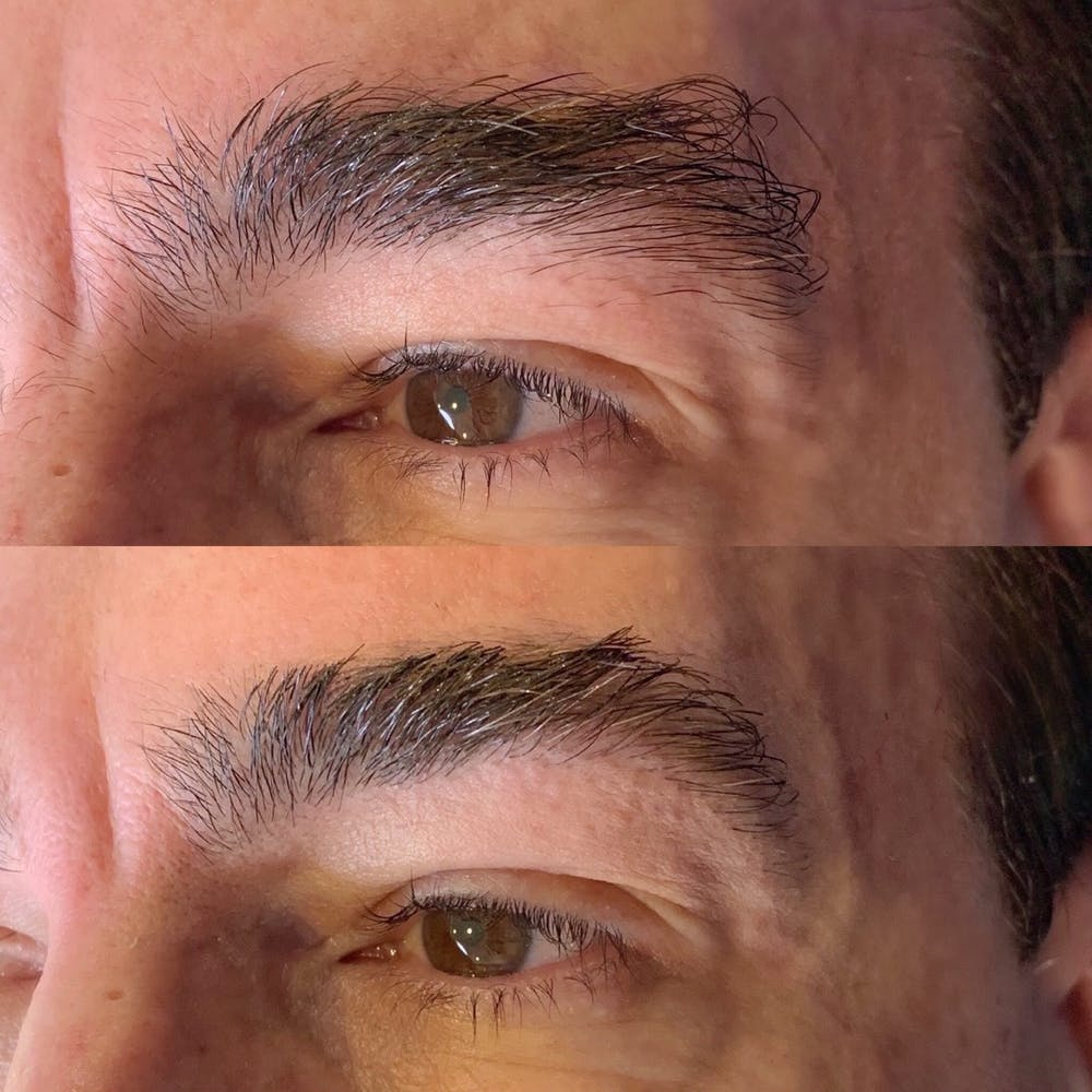 Brow Wax Gallery - Patient 3199002 - Image 1