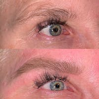 Brow Wax Gallery - Patient 3199004 - Image 1
