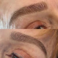 Brow Wax Gallery - Patient 3199005 - Image 1