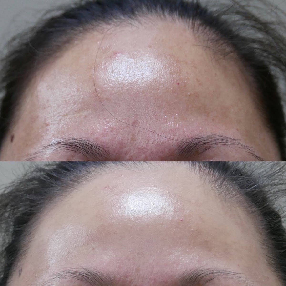 Chemical Peel Gallery - Patient 3199133 - Image 1