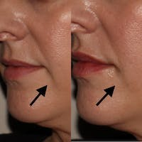 Dermal Fillers Gallery - Patient 3199252 - Image 1