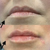 Dermal Fillers Gallery - Patient 3199253 - Image 1
