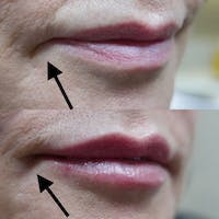 Dermal Fillers Gallery - Patient 3199255 - Image 1