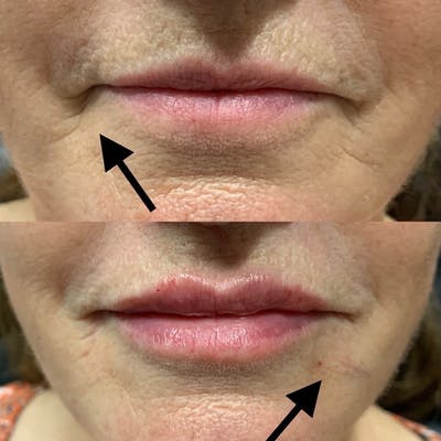Dermal Fillers Gallery - Patient 3199256 - Image 1
