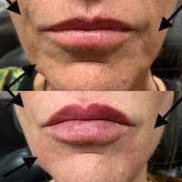 Dermal Fillers Gallery - Patient 3199257 - Image 1