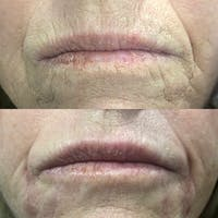 Dermal Fillers Gallery - Patient 3199259 - Image 1