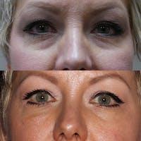 Eye Gallery - Patient 3199286 - Image 1