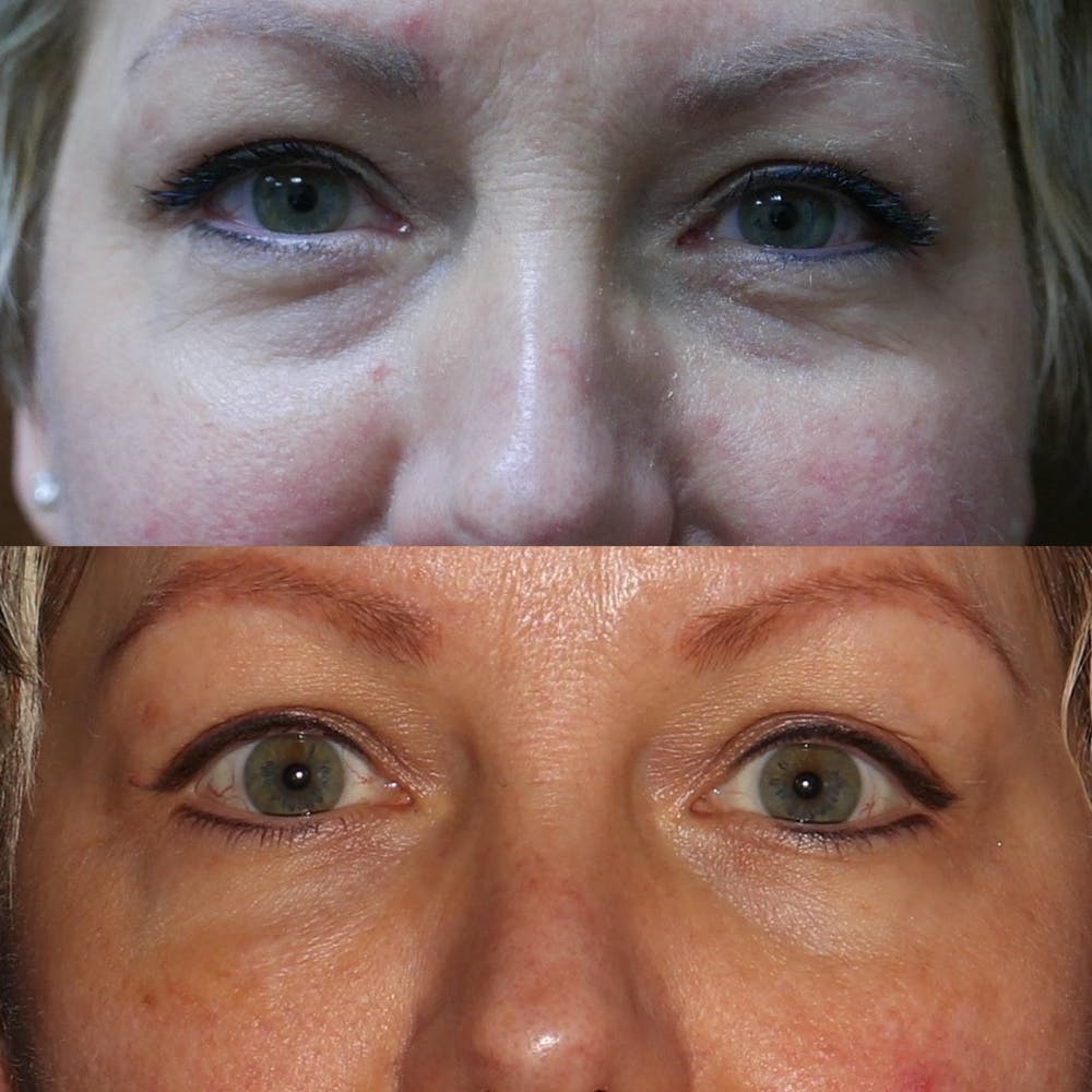 Eye Gallery - Patient 3199287 - Image 1