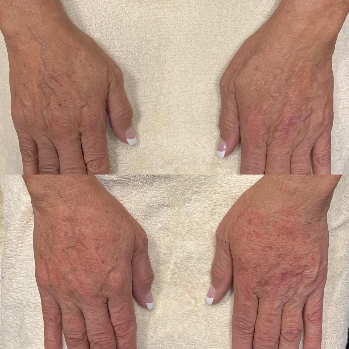 Hand Gallery - Patient 3199415 - Image 1